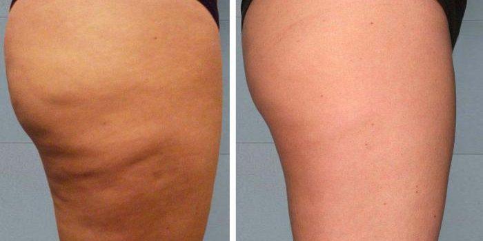 черная глина от целлюлита, фото до и после